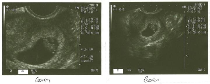 Crowdfunding still looks like a shrimp on the ultrasound.